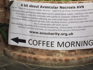 Fundraising for Avascular Necrosis AVN support group