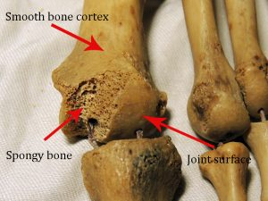 Image showing metatarsals of a foot which are classed as long bones. Bear in mind that in a living bone the 'holes' in the spongy bone are not empty, they are filled with bone marrow, blood vessels, nerves,and connective