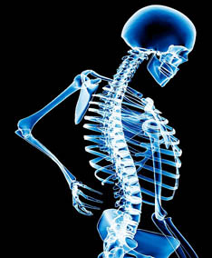 Affected joints and pain Healthy bones