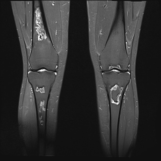 MRI scan displaying an unusual case of avascular necrosis AVN in the long bones.